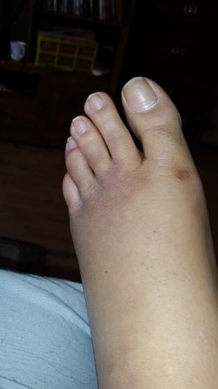 More bruises