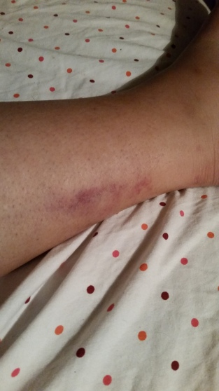 Even more bruises